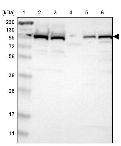 Western blot - Anti-USP5 antibody (ab244290)