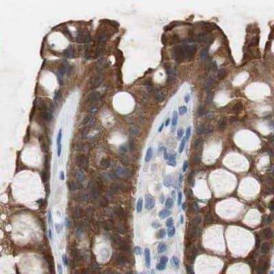 Immunohistochemistry (Formalin/PFA-fixed paraffin-embedded sections) - Anti-Villin antibody (ab244291)