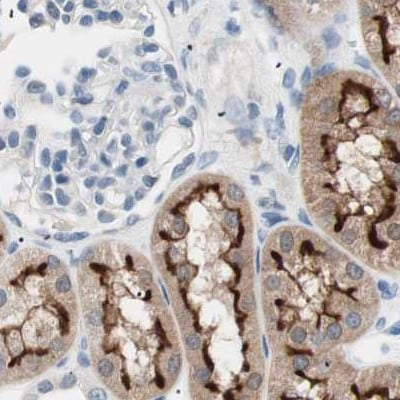 Immunohistochemistry (Formalin/PFA-fixed paraffin-embedded sections) - Anti-Villin antibody (ab244292)