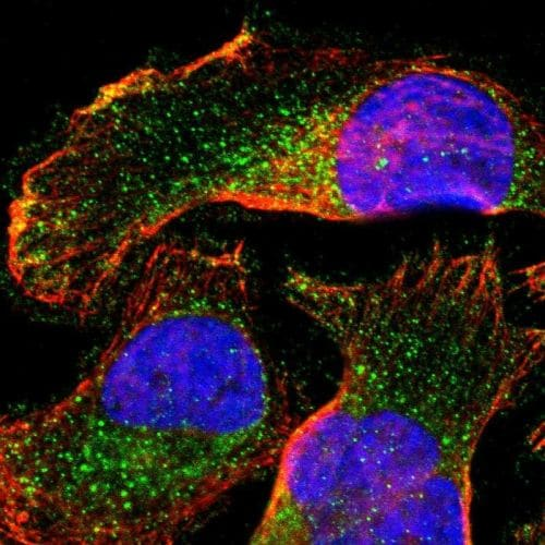 Immunocytochemistry/ Immunofluorescence - Anti-SLC27A4 / FATP4 antibody (ab244298)