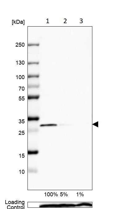 Western blot - Anti-Calretinin antibody (ab244299)