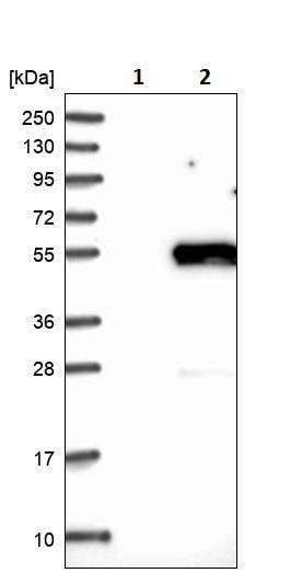Western blot - Anti-alpha Sarcoglycan antibody (ab244300)
