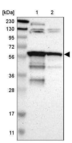 Western blot - Anti-RAB antibody (ab244307)