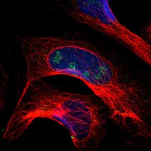 Immunocytochemistry/ Immunofluorescence - Anti-PITX1/BFT antibody (ab244308)