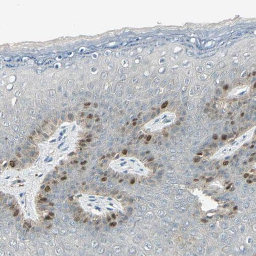 Immunohistochemistry (Formalin/PFA-fixed paraffin-embedded sections) - Anti-PITX1/BFT antibody (ab244308)