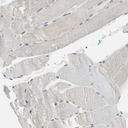 Immunohistochemistry (Formalin/PFA-fixed paraffin-embedded sections) - Anti-NFAT1 antibody (ab244310)