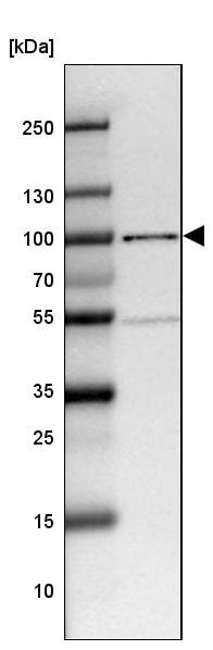 Western blot - Anti-NFAT1 antibody (ab244310)