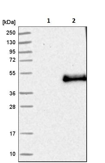 Western blot - Anti-Langerin antibody (ab244322)