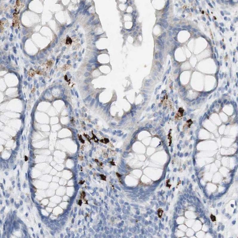 Immunohistochemistry (Formalin/PFA-fixed paraffin-embedded sections) - Anti-Langerin antibody (ab244322)