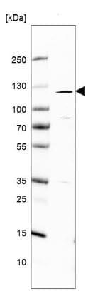 Western blot - Anti-Robo2 antibody (ab244331)