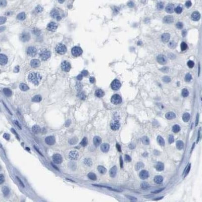 Immunohistochemistry (Formalin/PFA-fixed paraffin-embedded sections) - Anti-CD20 antibody (ab244336)