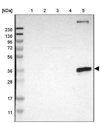 Western blot - Anti-CD20 antibody (ab244336)