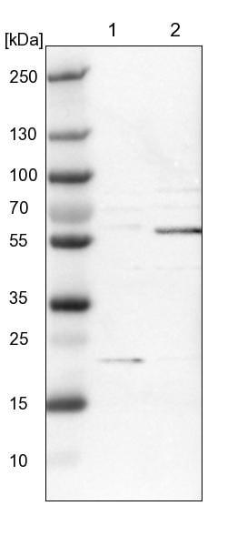 Western blot - Anti-Spastin antibody (ab244354)