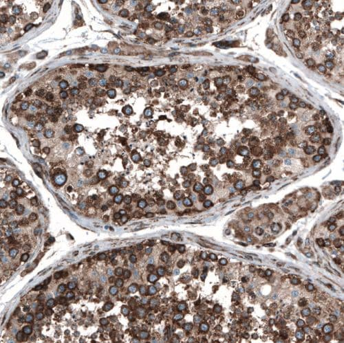 Immunohistochemistry (Formalin/PFA-fixed paraffin-embedded sections) - Anti-Caprin-1 antibody (ab244360)
