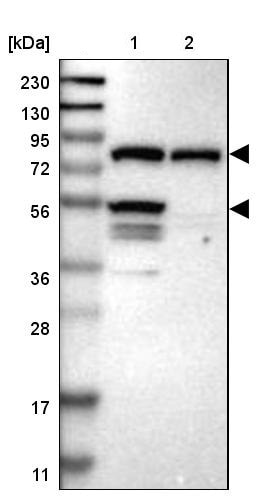 Western blot - Anti-IFT81 antibody (ab244369)