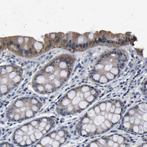 Immunohistochemistry (Formalin/PFA-fixed paraffin-embedded sections) - Anti-UCHL3 antibody (ab244371)