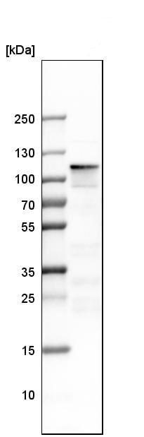 Western blot - Anti-Rb2 p130 antibody (ab244373)