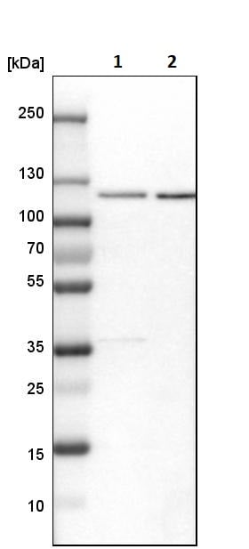Western blot - Anti-Rbm15/OTT antibody (ab244374)
