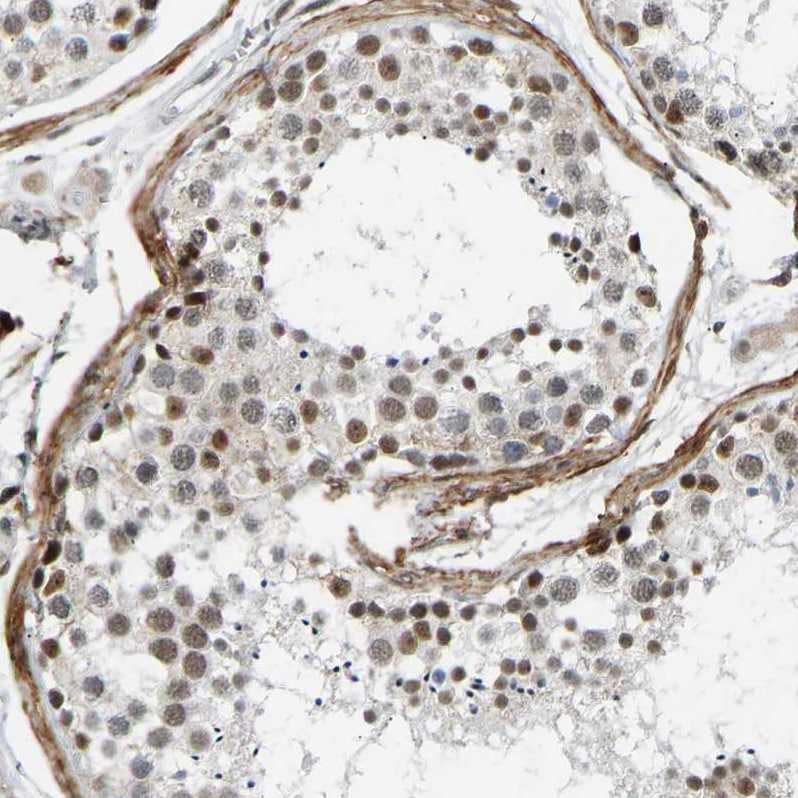 Immunohistochemistry (Formalin/PFA-fixed paraffin-embedded sections) - Anti-Rbm15/OTT antibody (ab244374)