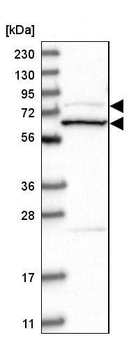 Western blot - Anti-Amphiphysin antibody (ab244375)