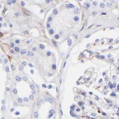 Immunohistochemistry (Formalin/PFA-fixed paraffin-embedded sections) - Anti-Amphiphysin antibody (ab244375)