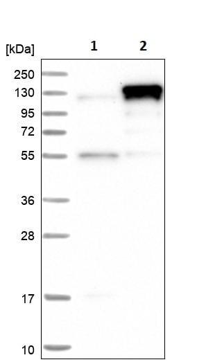 Western blot - Anti-CBLB antibody (ab244376)