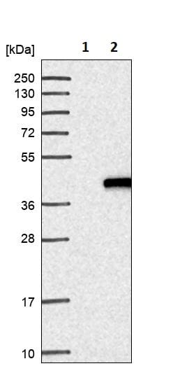 Western blot - Anti-ING2 antibody (ab244387)