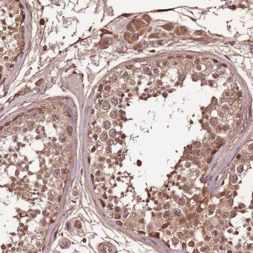 Immunohistochemistry (Formalin/PFA-fixed paraffin-embedded sections) - Anti-Density Regulated Protein antibody (ab244388)