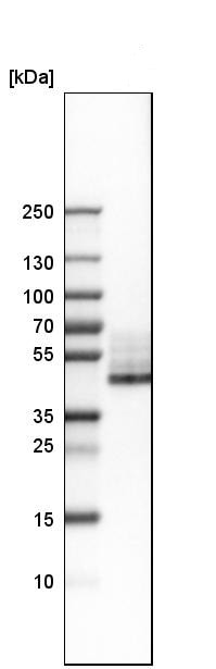 Western blot - Anti-CD38 antibody (ab244390)
