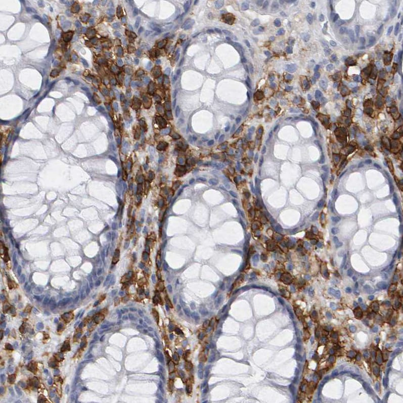 Immunohistochemistry (Formalin/PFA-fixed paraffin-embedded sections) - Anti-CD38 antibody (ab244390)