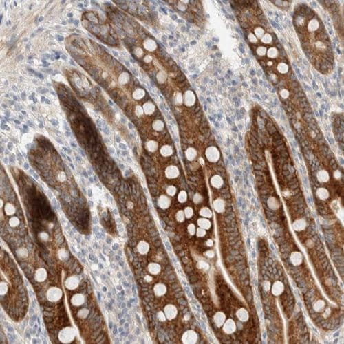 Immunohistochemistry (Formalin/PFA-fixed paraffin-embedded sections) - Anti-CASK antibody (ab244393)