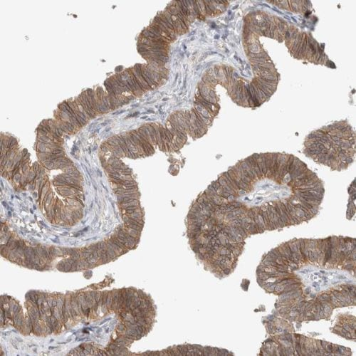 Immunohistochemistry (Formalin/PFA-fixed paraffin-embedded sections) - Anti-Deptor antibody (ab244395)