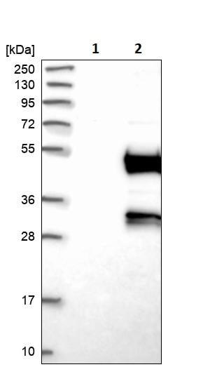 Western blot - Anti-Deptor antibody (ab244395)