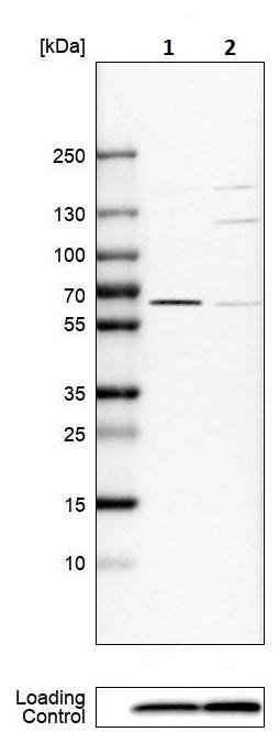Western blot - Anti-P4HA1 antibody (ab244400)