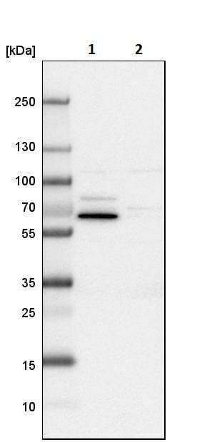 Western blot - Anti-USH1C/Harmonin antibody (ab244404)
