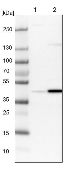 Western blot - Anti-RTCD1 antibody (ab244410)