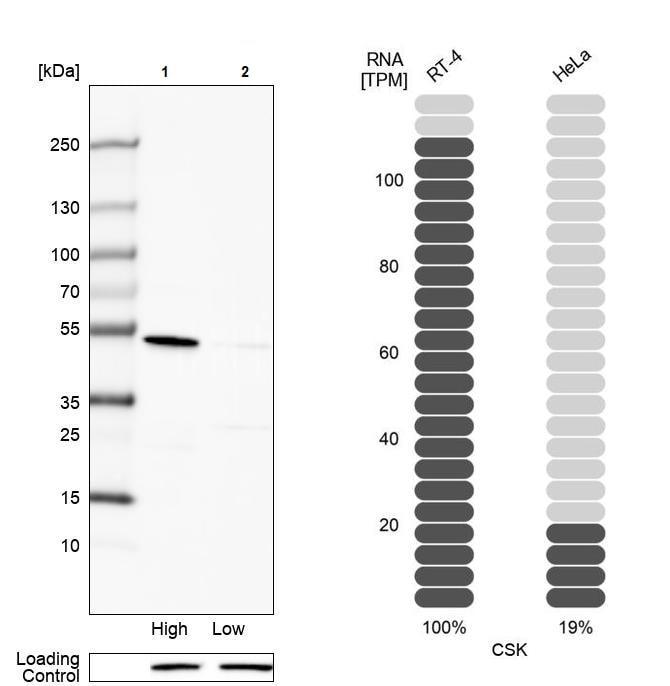 Western blot - Anti-CSK antibody (ab244414)