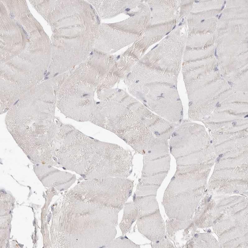 Immunohistochemistry (Formalin/PFA-fixed paraffin-embedded sections) - Anti-CSK antibody (ab244414)