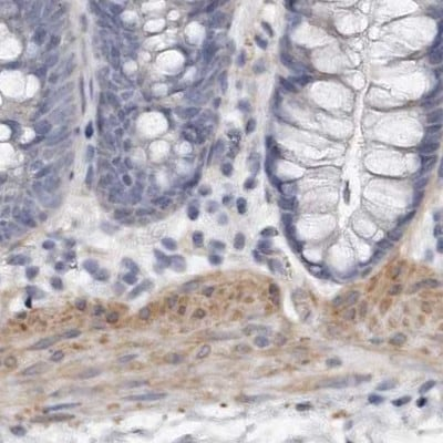 Immunohistochemistry (Formalin/PFA-fixed paraffin-embedded sections) - Anti-LMOD1 antibody (ab244415)