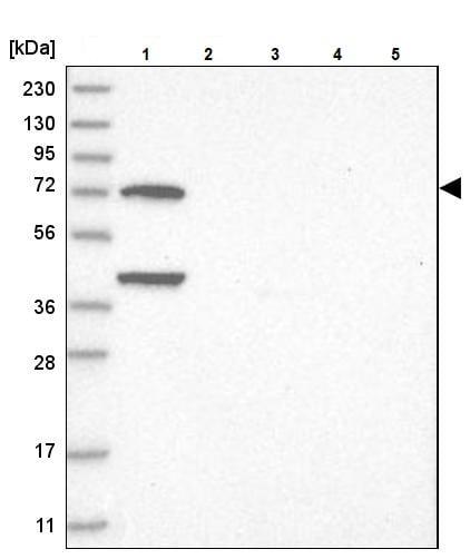 Western blot - Anti-LMOD1 antibody (ab244415)