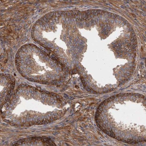 Immunohistochemistry (Formalin/PFA-fixed paraffin-embedded sections) - Anti-ENAH/MENA antibody (ab244417)