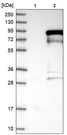 Western blot - Anti-TORC2 antibody (ab244418)