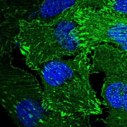 Immunocytochemistry/ Immunofluorescence - Anti-ENAH/MENA antibody (ab244423)