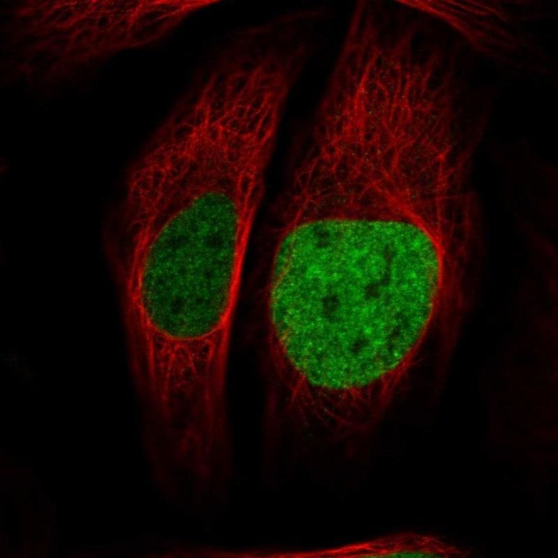 Immunocytochemistry/ Immunofluorescence - Anti-ATAD2 antibody (ab244431)