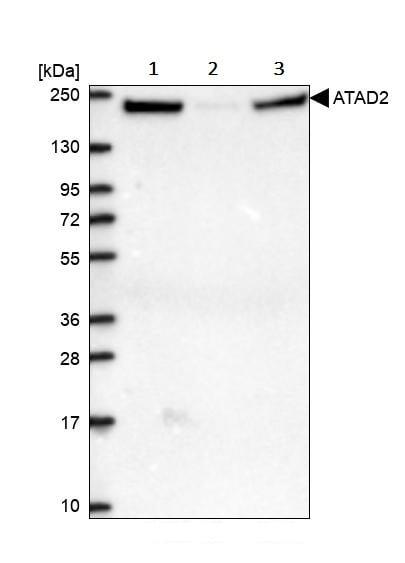 Western blot - Anti-ATAD2 antibody (ab244431)