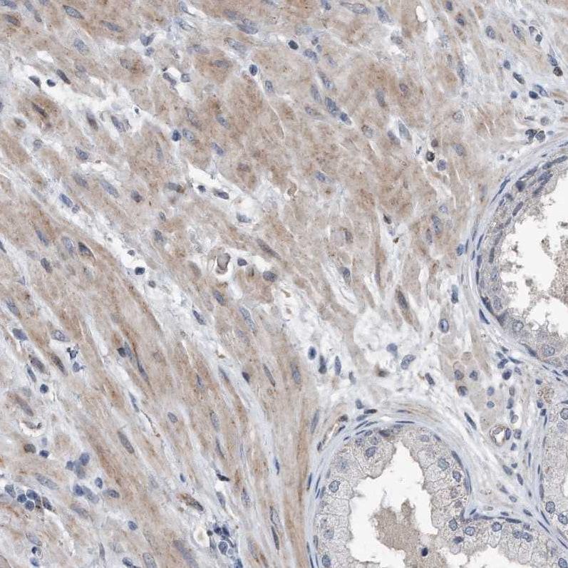 Immunohistochemistry (Formalin/PFA-fixed paraffin-embedded sections) - Anti-Dystonin/BPA antibody (ab244440)