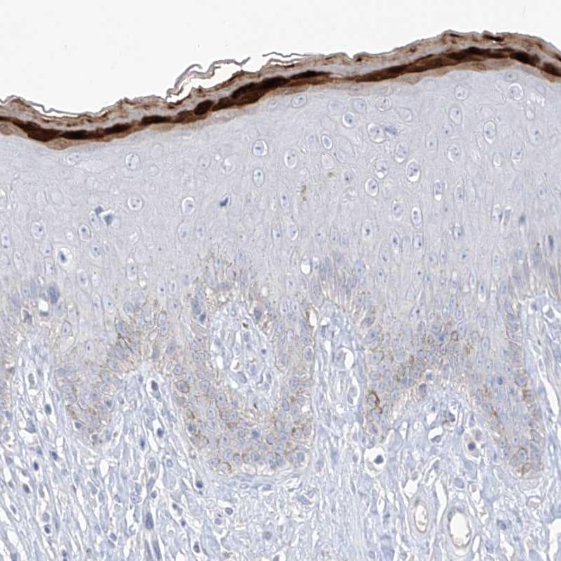 Immunohistochemistry (Formalin/PFA-fixed paraffin-embedded sections) - Anti-ASPRV1 antibody (ab244449)