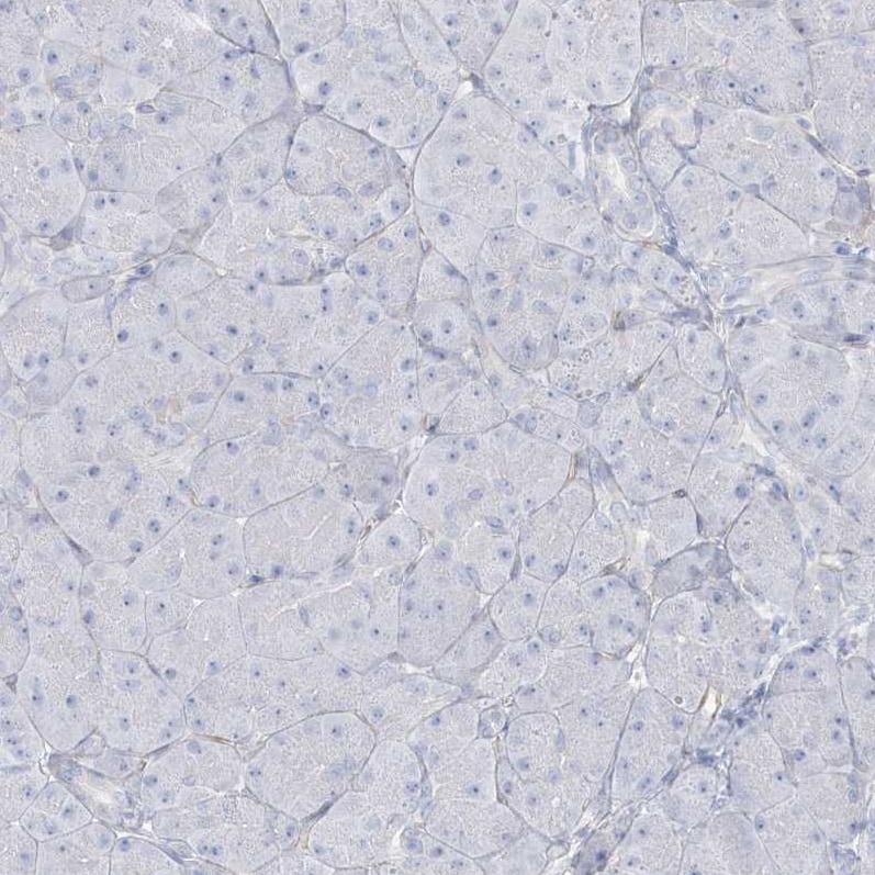 Immunohistochemistry (Formalin/PFA-fixed paraffin-embedded sections) - Anti-AGXT antibody (ab244450)