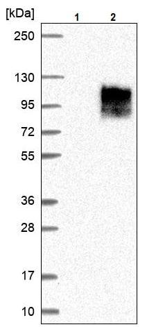 Western blot - Anti-SLC26A3 antibody (ab244452)
