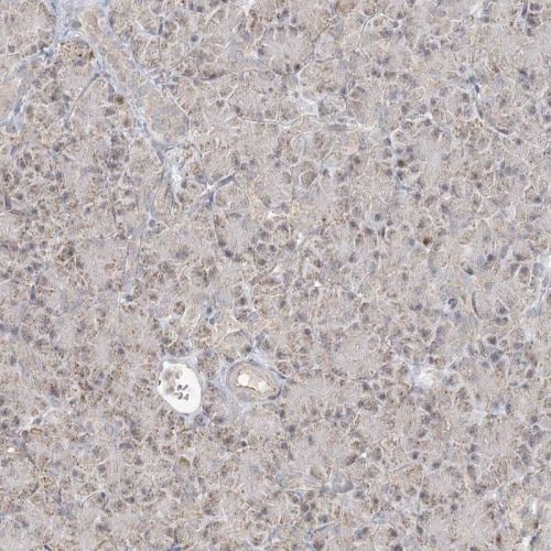 Immunohistochemistry (Formalin/PFA-fixed paraffin-embedded sections) - Anti-LACTB antibody (ab244454)